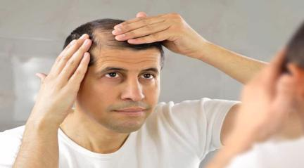 Hair loss and diabetis